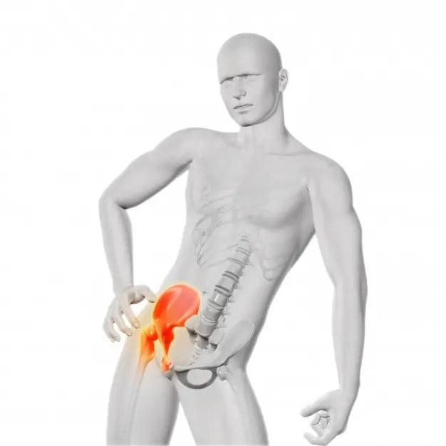 csípő sérülés-sprain