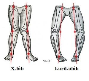 a láb középső ízületének artrózisa