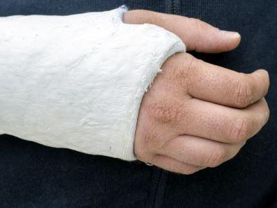 kéz helyreállítása csukló törése után