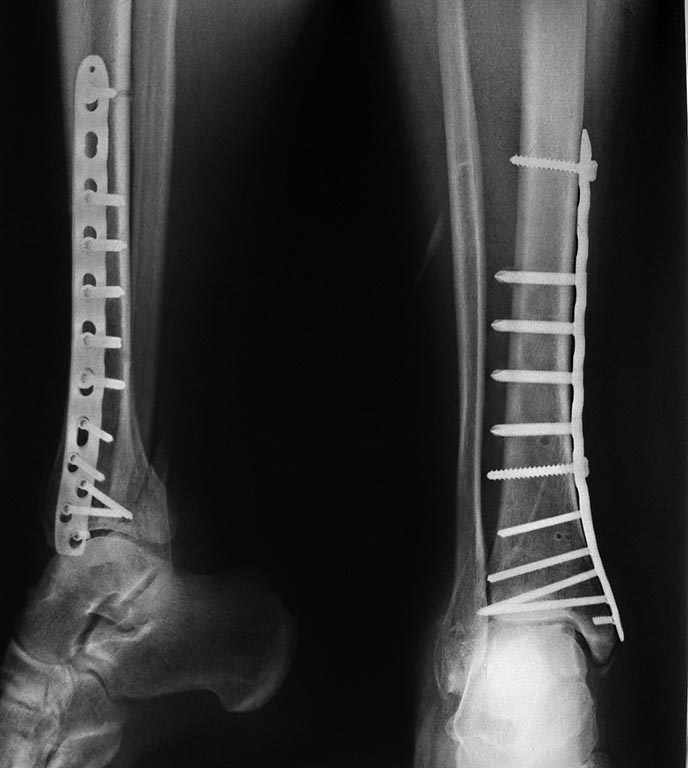 Fizioterápia a lumbosacra gerinc osteochondrosisához