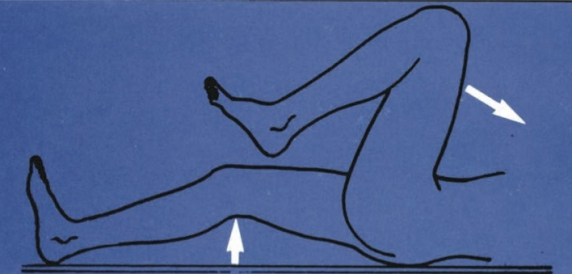 a csípő kórtörténetének veleszületett diszlokációja)