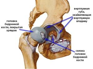 a csípőízület gyulladásának okai ízületi gyógyszer austin