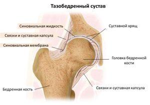 a jobb csípőízület deformáló artrózisa
