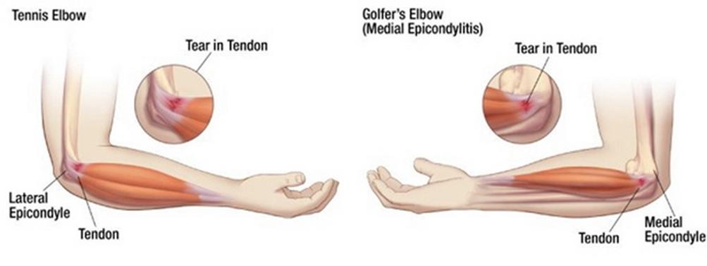 a könyökízület első fokú artrózisa