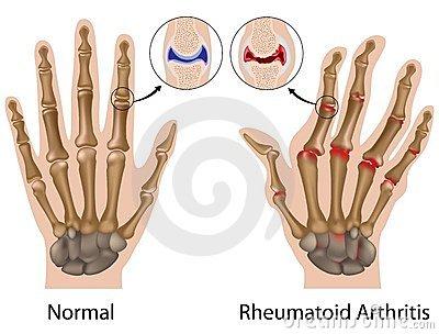 a kéz ujjai ízületeinek ízületi gyulladása okozza)