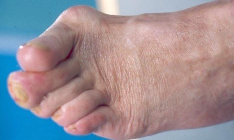 a lábujjak ízületeinek károsodása kámfor olaj térdkezeléshez