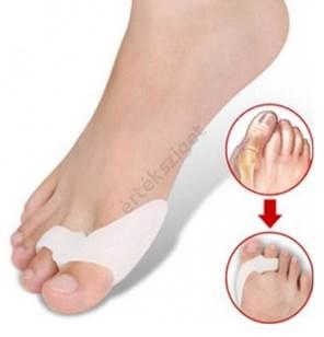 a nagy lábujj artritisz hogyan kezelhető)
