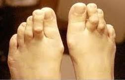 a nagy lábujj ízülete folyamatosan fáj)