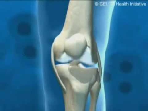 a térd fekvő betegség artrózisának kezelése