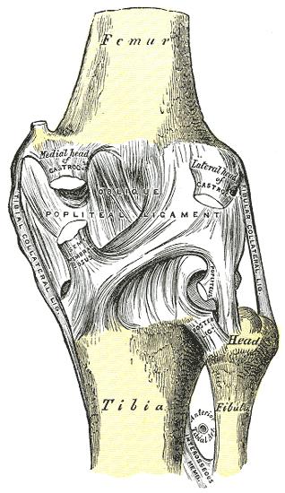 a térdízület meniszkuszos törése