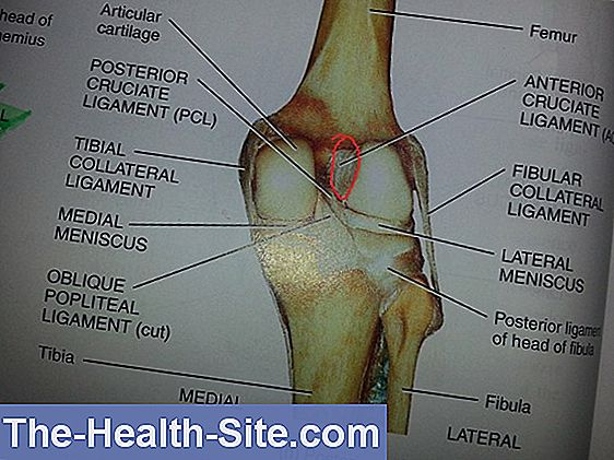 térdízületi sérülések keresztezett ligamentuma tünetei)