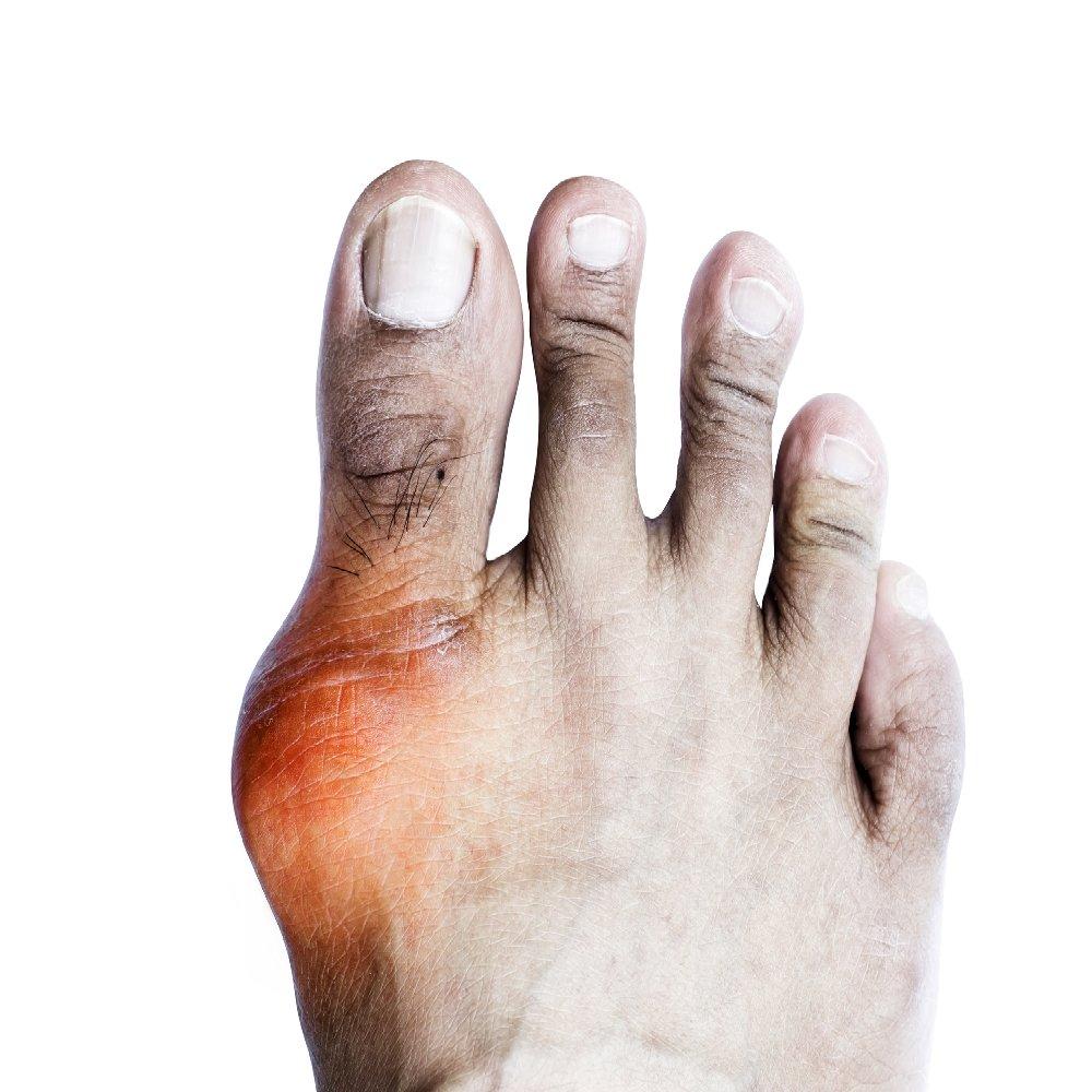 arthrosis artritisz gyógyszeres kezelés)