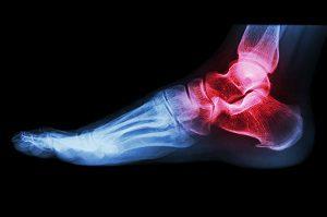boka kezelése a ragasztások törése után térdízület diszplázia