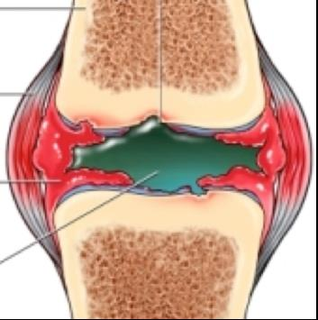a térdízület periosteumának gyulladása