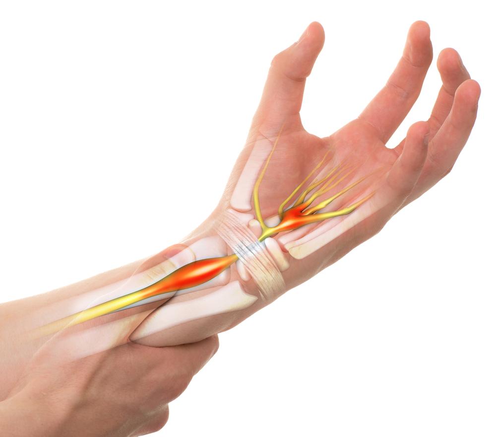 Mi van, ha rossz a fájdalom és a duzzanat? - Típusok