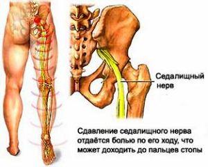 állítsa le a bokaízület ízületi gyulladását