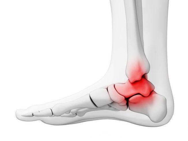 hogyan kezeljük a boka ízületi gyulladást meniszcus sprain térdkezelés