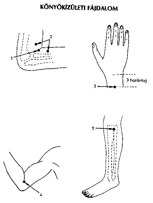 fáj és megsütjük a könyökízületet hogyan kezeljük a kézízületi gyulladást