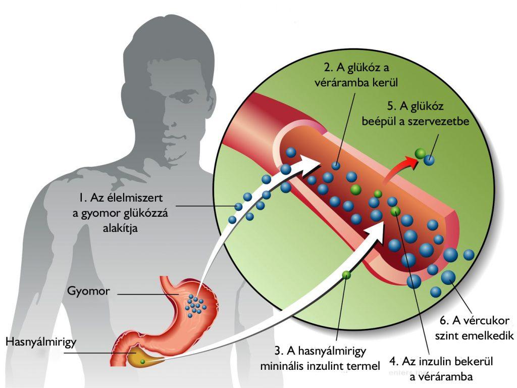 vércukorszint ízületi fájdalom