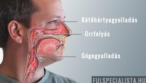 ízületi arccsont kezelése)