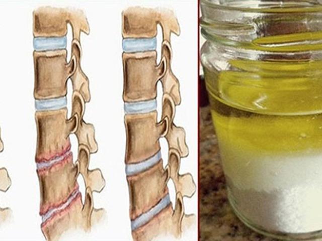 chondoprotektív gyógyszerek a nyaki osteochondrosishoz