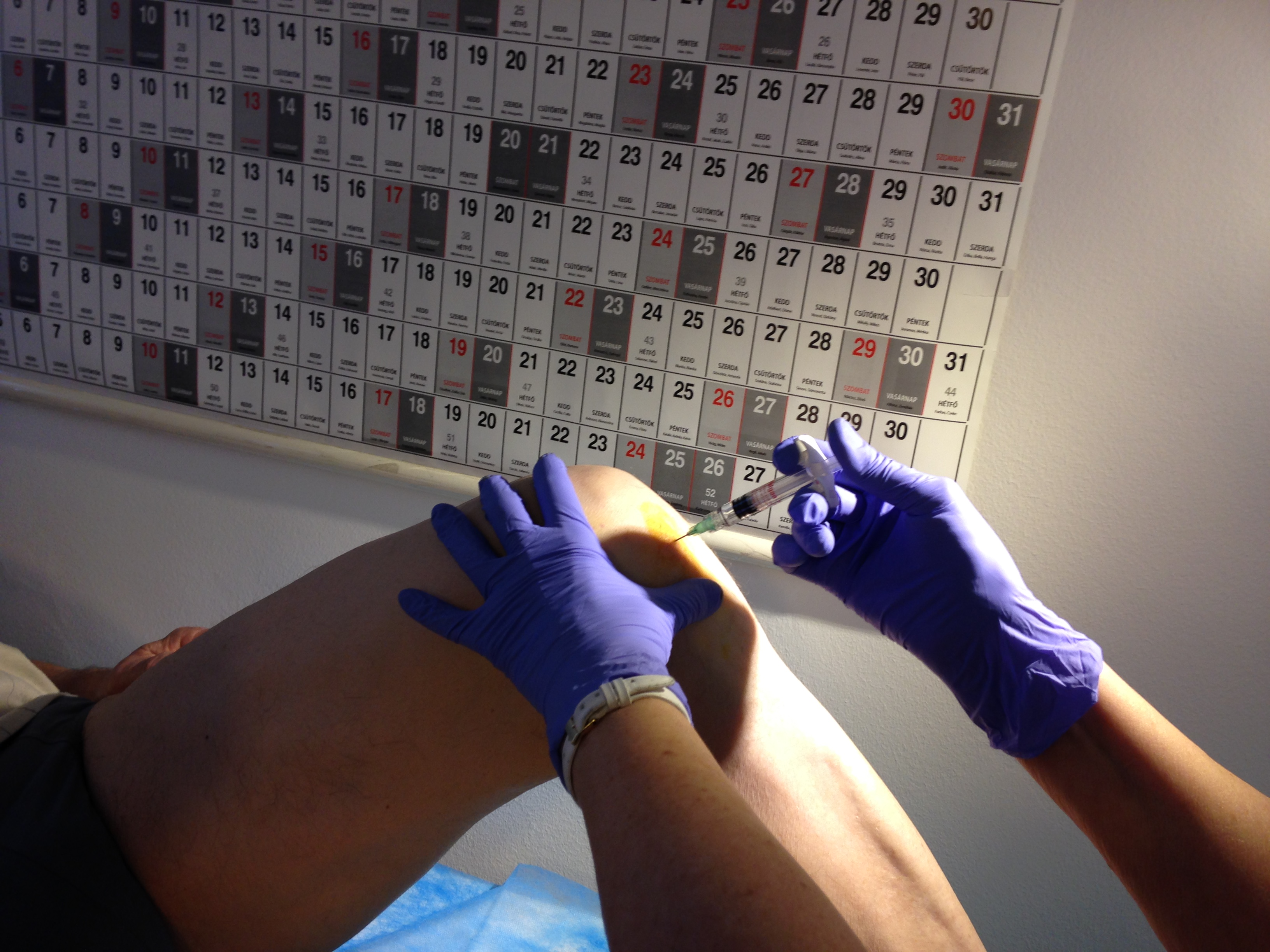térdízületi kezelés injekció)