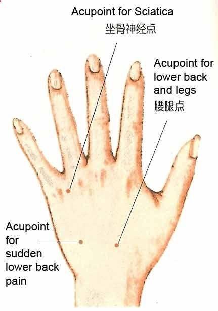 arthrosan arthrosis kezelés