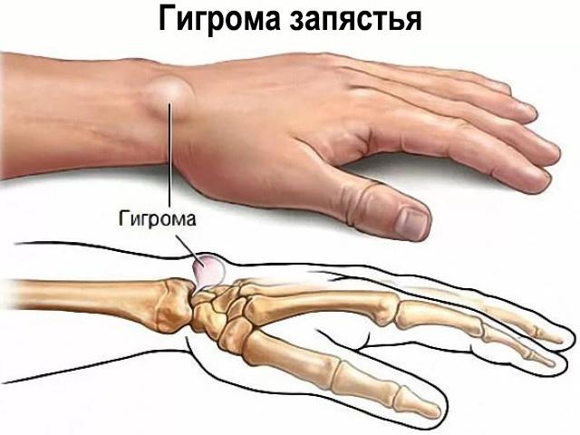 arthrosis zúzódáskezelés
