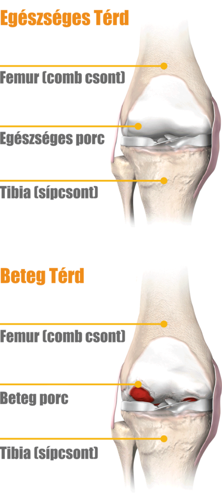 artrózis a térd kezelésében