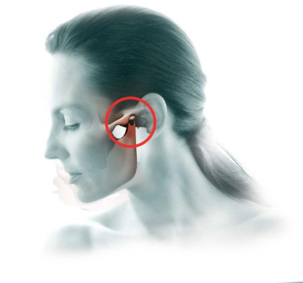 az arc ízülete fáj a tüneteket
