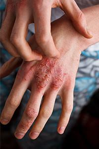ujjízület ödéma kezelés