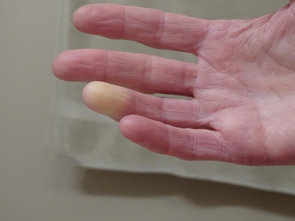 az ujjak rheumatoid arthrosisának kezelése a vállízület fájdalmának mr