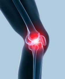 az ízületek fájnak a ringatástól ízületi fájdalom fájdalomkezelés nélkül