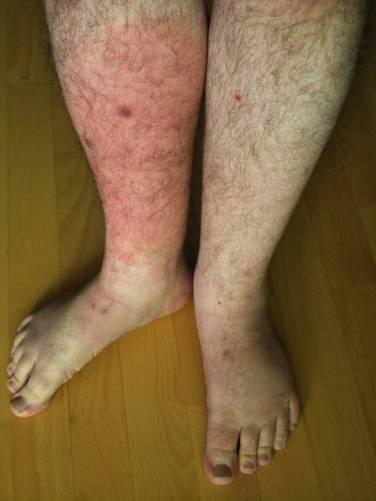 az ízületek streptococcus fertőzésének kezelése közös betegség-konzultáció