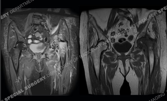 osteoarthritis radiology hip)