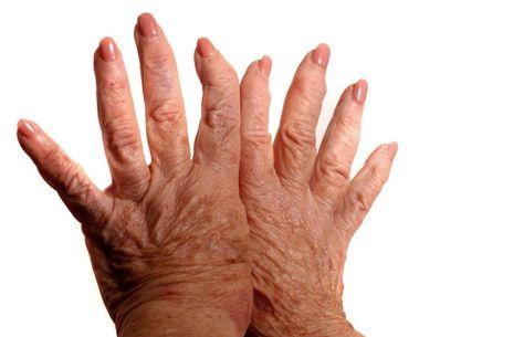 izületi gyulladás kézen kezelése)