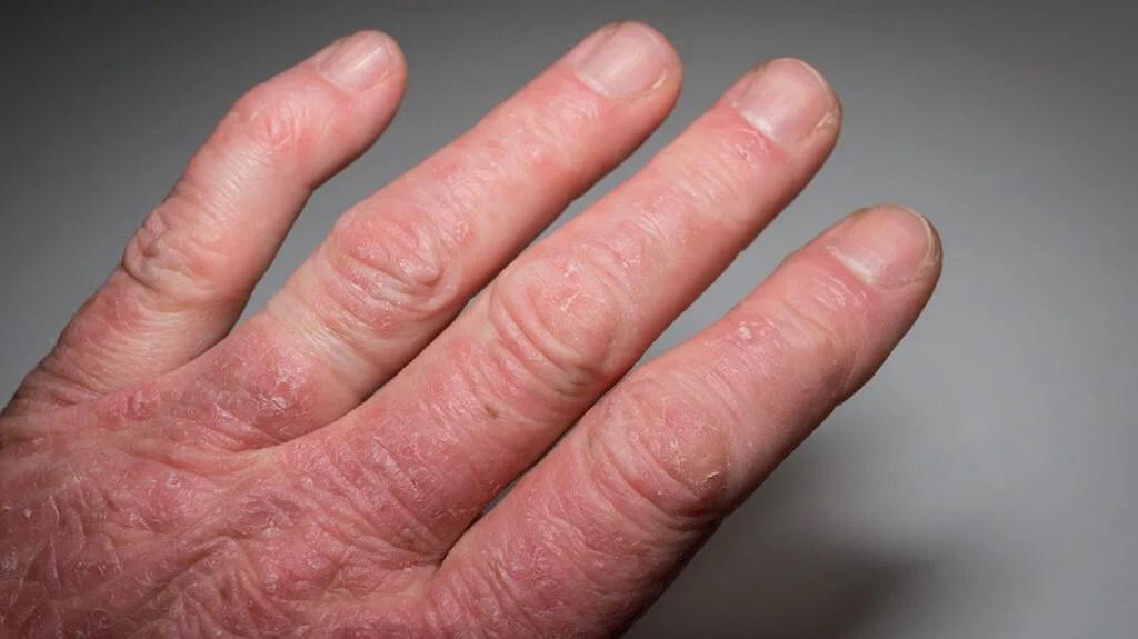 artritisz pszoriatika