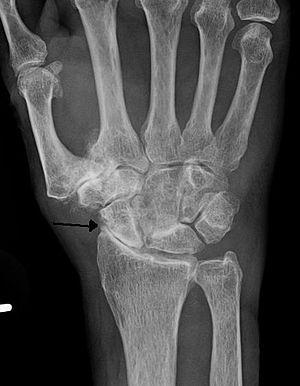 carpal carpal artrosis)