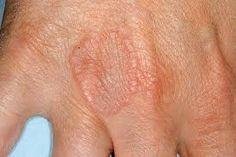 mágneses eszközök osteoarthritis kezelésére
