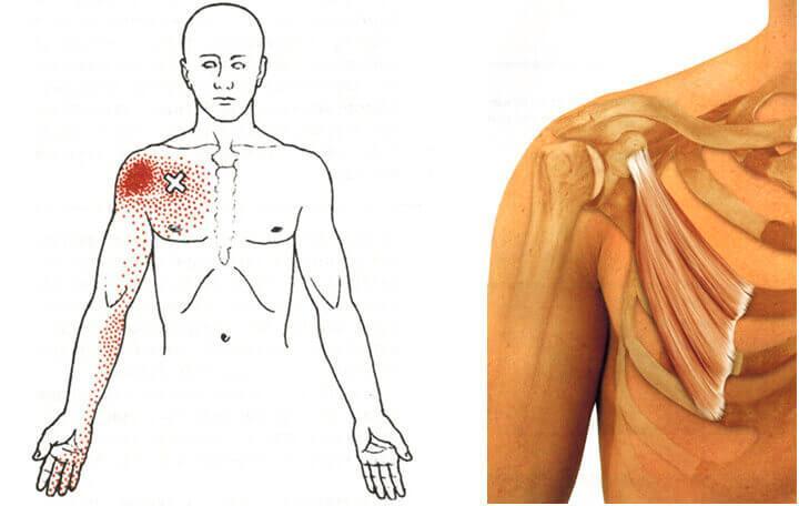 váll fájdalomkezelés sérülés után)