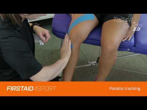 ujjízület-sprain kezelés)