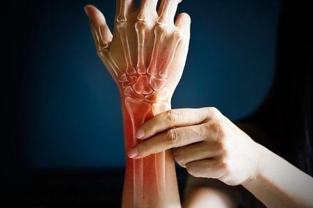 a kezek ízületei köszvényes izületi gyulladása