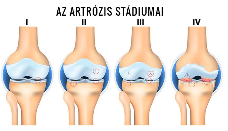 homok artrózis kezelésére