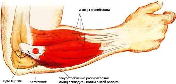 blokád az ízületben, térdízület artrózisával