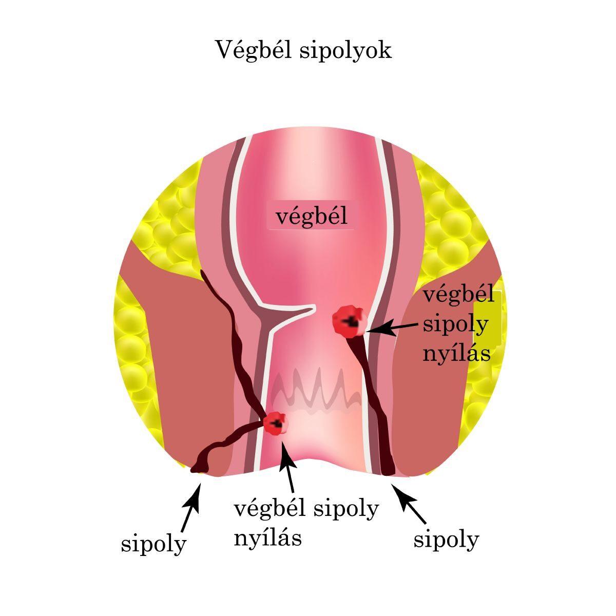 bokakötések repedése tünetek és kezelés csípő tendinosis betegség