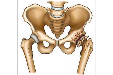a csípő coxarthrosisával a térd fáj