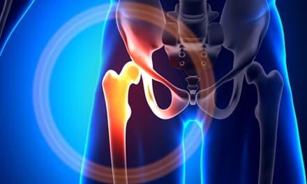 Csípő - Súlypont Ízületklinika