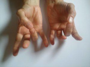 fáj a bal kéz mutatóujja középső ízülete)
