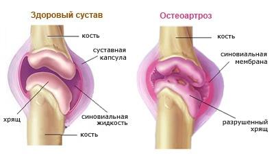 térdízületek kezelése artrózissal