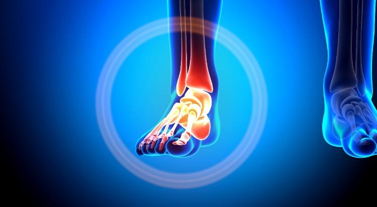 futó fájdalom a bokaízületben